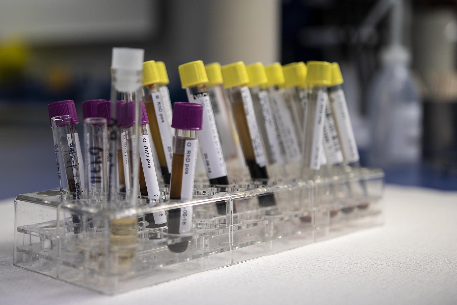 Blood Testing Vials | OVitaminPro.com